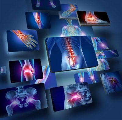 kontuzje mięśni i stawów